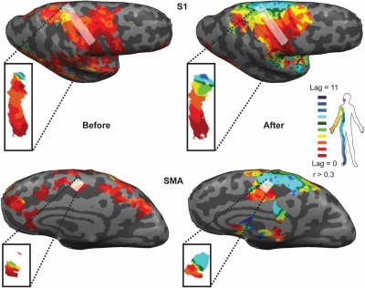 Discontinuity of cortical gradients reflects sensory impairment